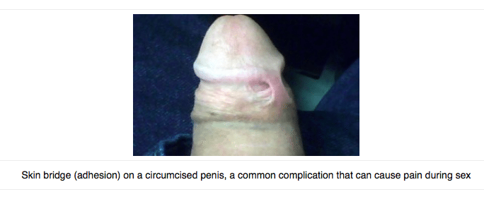 Penile adhesions, also called skin bridges, are a common circumcision complication.
